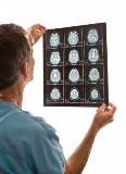 India MRI Market & its Future Discussed in New Netscribes Report Recently Published at MarketPublishers.com