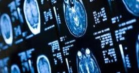 India Neurological Device Market Discussed by iData Research in Topical Report Published at MarketPublishers.com