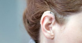 World Hearing Implants Market Discussed in New RNCOS Study Recently Published at MarketPublishers.com