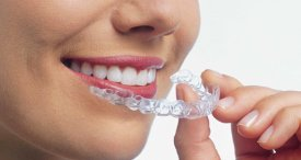 Global Clear Aligner Market to Grow at High Rate, Projects Daedal Research In Its Report Available at MarketPublishers.com