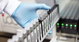 Key Countries Immunodiagnostics Market Examined by VPG in New Cutting-edge Report Now Available at MarketPublishers.com