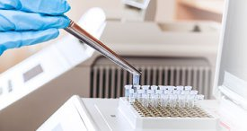 Global Molecular Diagnostics Market to See Further Uptake in the Next 5 Years, Informs VPG in New Topical Study Recently Added at MarketPublishers.com