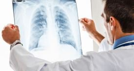 Pulmonary Embolism Market to See Considerable CAGR to 2021, Predicts Daedal Research in Its In-demand Report Published at MarketPublishers.com