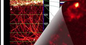 World Vascular Imaging Market to Post 6.5% CAGR to 2022, Predicts M&M in Its New Research Report Now Available at MarketPublishers.com