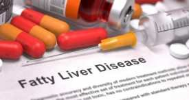 World Fatty Liver Disease Market to Post Impressive CAGR through 2022, Expects Azoth Analytics in Its New Reports Available at MarketPublishers.com