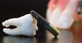 World Dental Implant & Prosthetic Market to Reach USD 9.8 Bn by 2022, Predicts Lucintel in Its Insightful Report Available at MarketPublishers.com