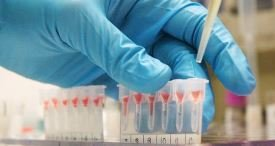 Molecular Blood Typing, Grouping & Infectious Disease NAT Marketplace Examined by VPG in Its Discounted Report Published at MarketPublishers.com