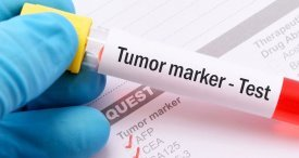 World Tumor Marker Testing Market to Enjoy Robust Growth in the Offing, Expects VPG in Its In-Demand Report Now Available at MarketPublishers.com