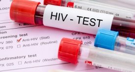 HIV/AIDS Remain One of Top Global Public Health Concerns